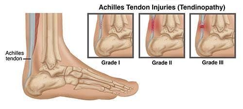 from Achilles tendon pain